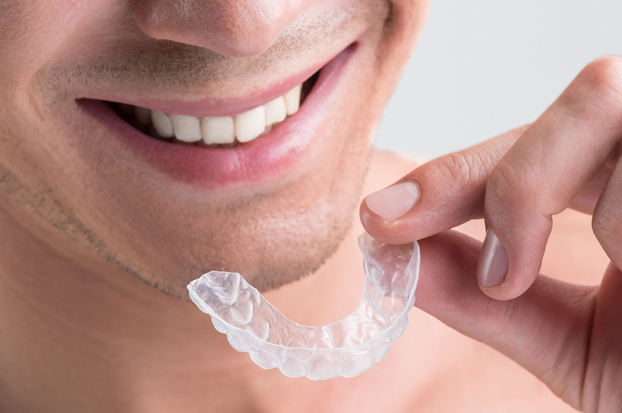 All About Invisalign 1
