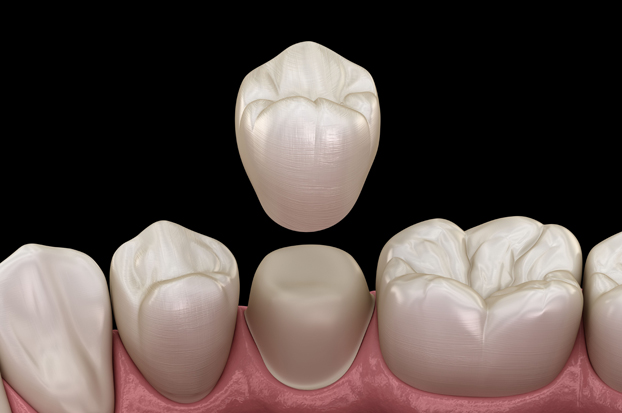 How To Care For A Dental Crown