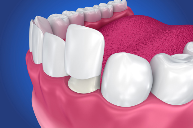 What Are Dental Crowns