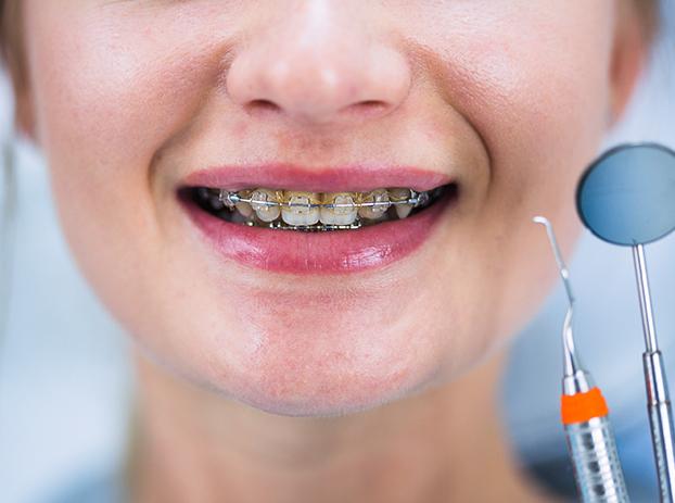 What Are Orthodontics 1