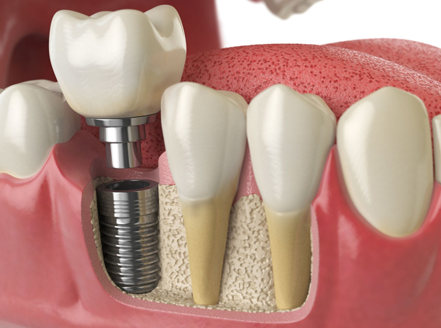 Why Are Dental Implants Necessary