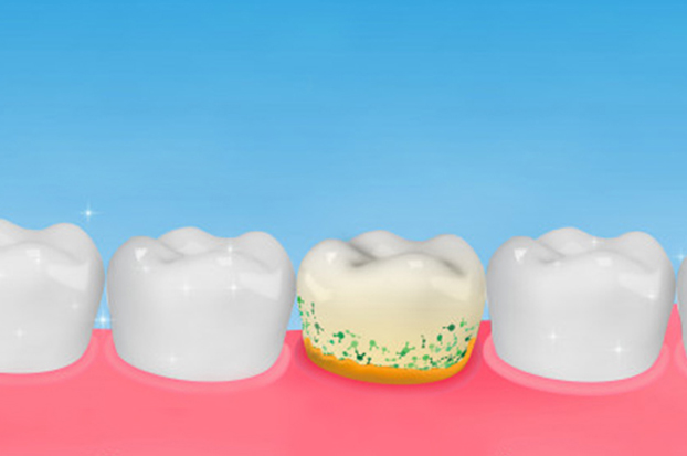 Why Is A Periodontal Scaling And Root Planing Needed