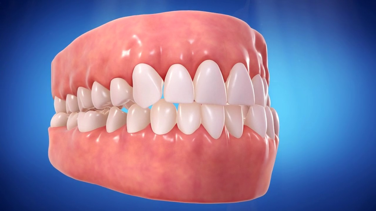 Invisalign Attacks What Are They And What Are They For